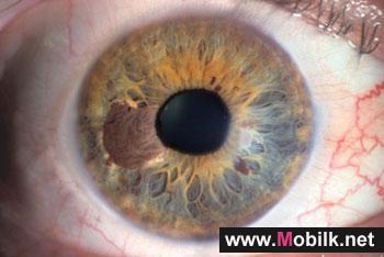 دراسة ألمانية تلغي الربط بين سرطان العين والهاتف المحمول
